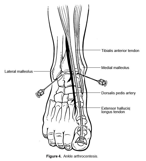 Knee Injection Diagram on foot and ankle diagram