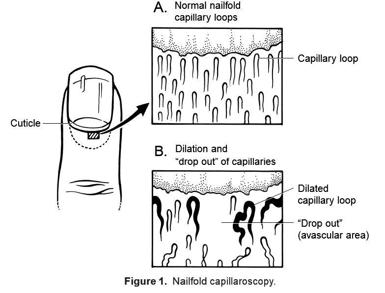 RheumaKnowledgy » Nailfold Capillaroscopy