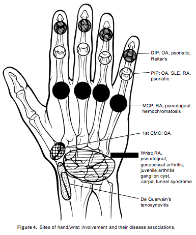 Sites of hand/wrist involvement and their disease associations.