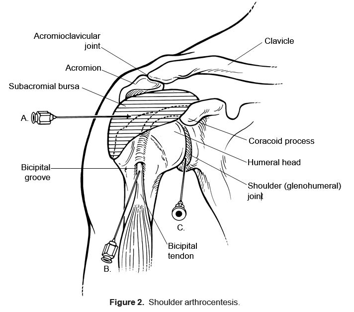 steroid injection sites tricep