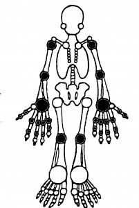 Figure. 28 Joint Exam - darkened joints are examined and recorded as TJC =  XX/28 or SJC = XX/28