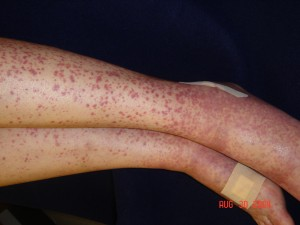 Lower Extremity Palpable Purpura